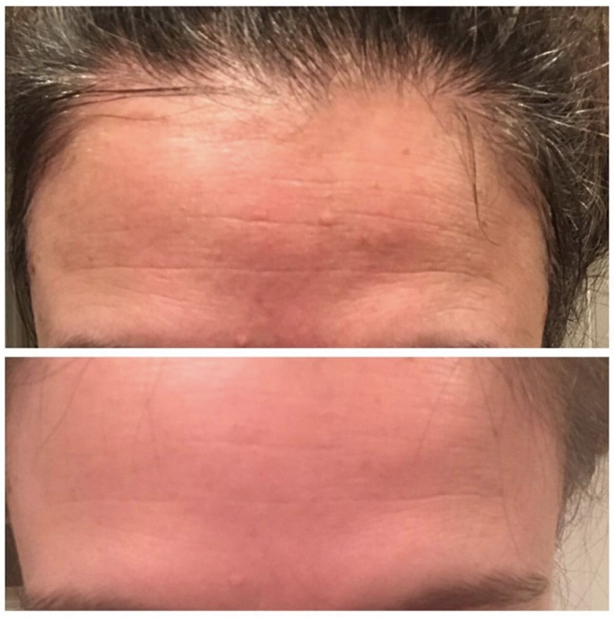 Sdara Skincare Derma Roller